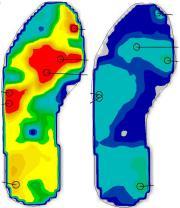 ohne (l) - mit (r) diabetes adaptierter Fußbettung